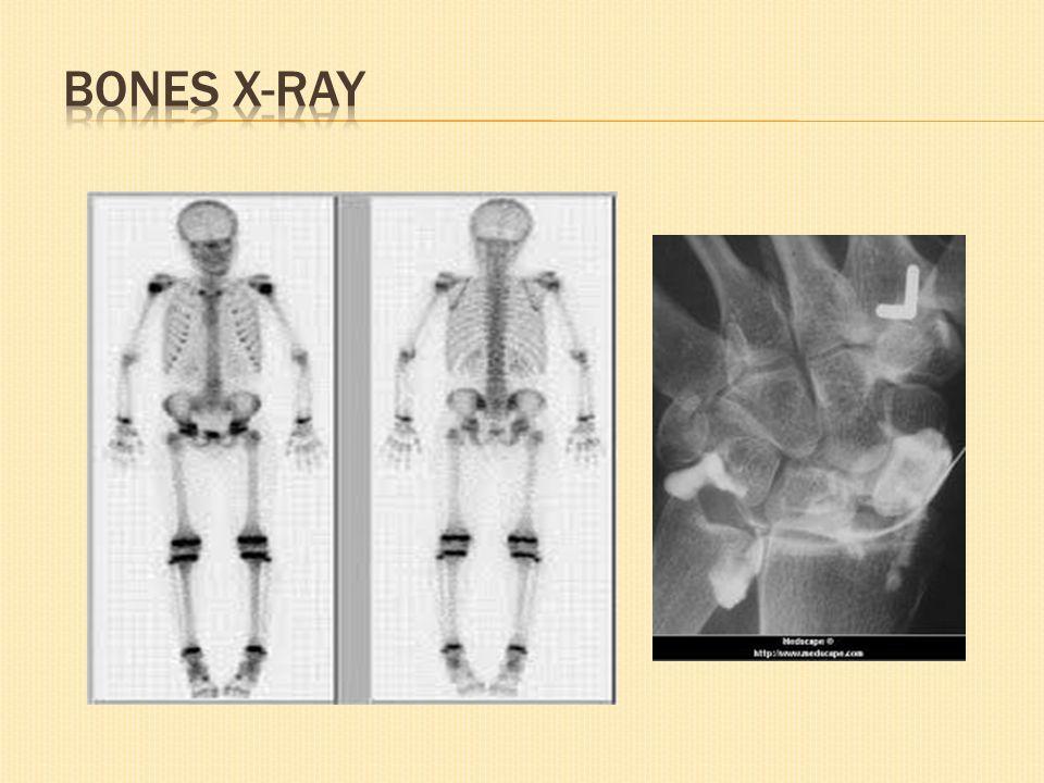 Arthrography digunakan untuk mengidentifikasi kerusakan pada sendi atau ligament sekitar sendi.