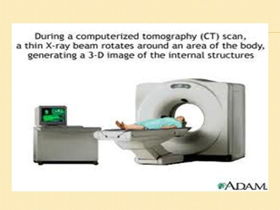 Electromyography (EMG) prosedur yang dilakukan untuk memberikan informasi mengenai elektrikal otot dan saraf.