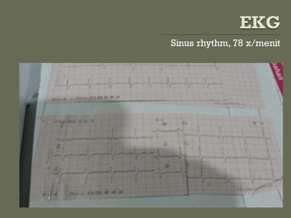 Sinus rhythm, 78 x/menit