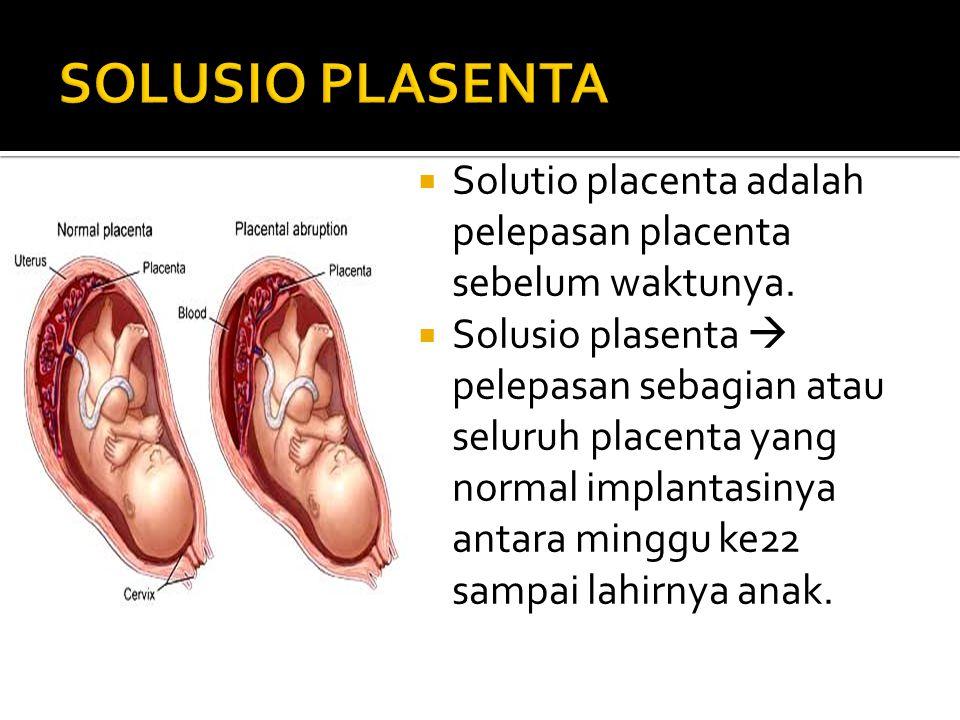  Solutio placenta adalah pelepasan placenta sebelum waktunya.  Solusio plasenta  pelepasan sebagian atau seluruh placenta yang normal implantasinya