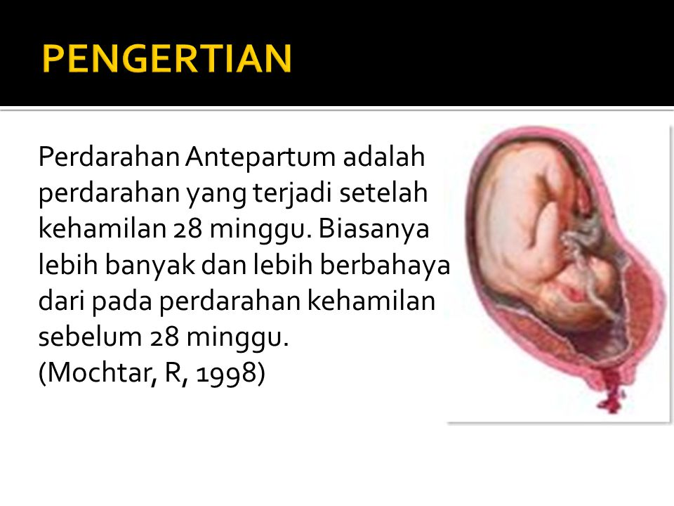 Perdarahan Antepartum adalah perdarahan yang terjadi setelah kehamilan 28 minggu. Biasanya lebih banyak dan lebih berbahaya dari pada perdarahan keham