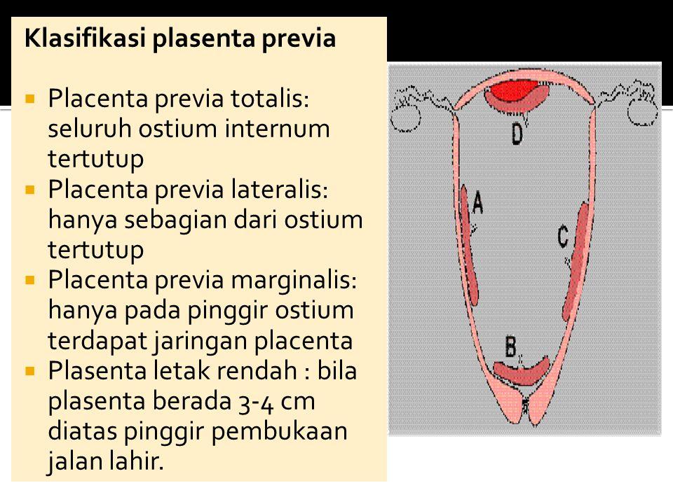 Klasifikasi plasenta previa  Placenta previa totalis: seluruh ostium internum tertutup  Placenta previa lateralis: hanya sebagian dari ostium tertut