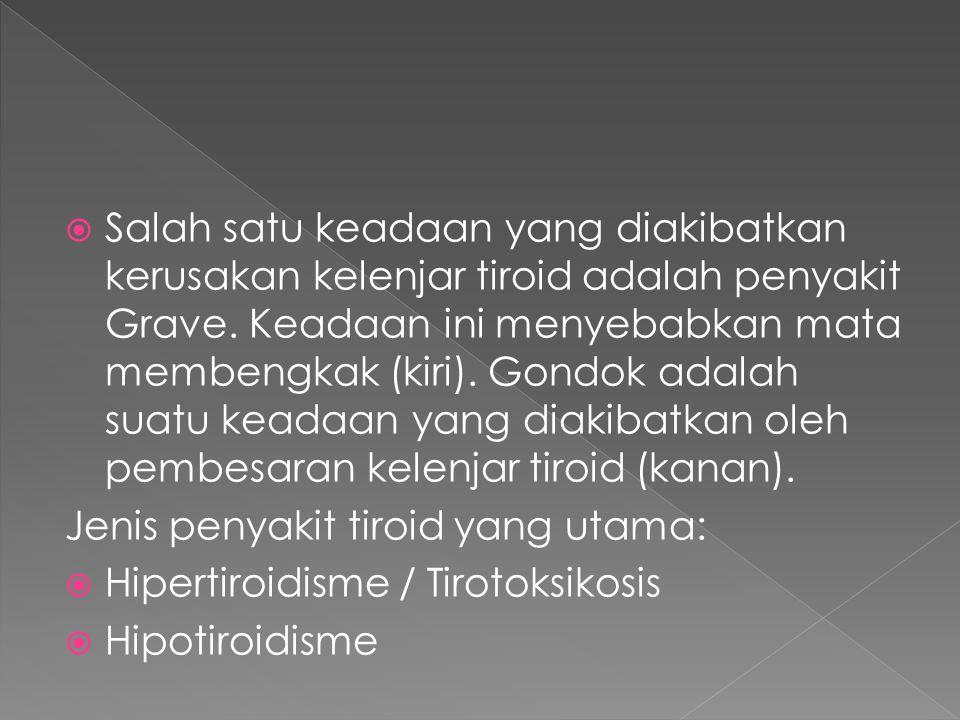  Salah satu keadaan yang diakibatkan kerusakan kelenjar tiroid adalah penyakit Grave. Keadaan ini menyebabkan mata membengkak (kiri). Gondok adalah s