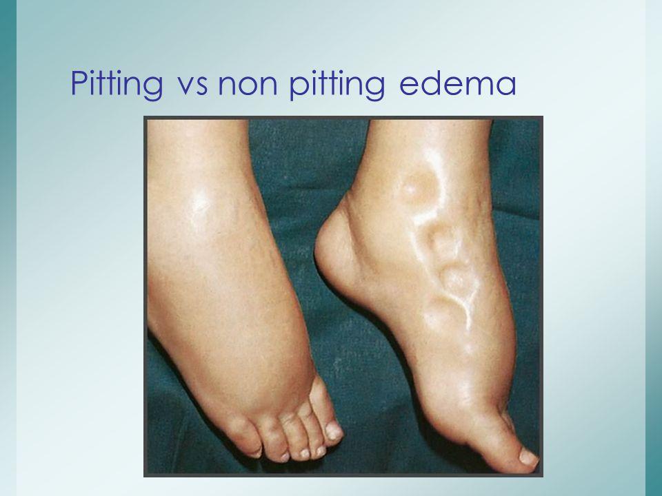 Pitting vs non pitting edema
