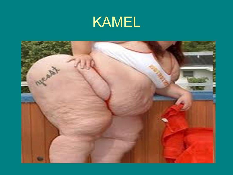 Penyakit-penyakit yang Berhubungan Dengan Lemak Apabila tubuh kekurangan lemak atau gangguan absorsi lemak, dimungkinkan gejala defisiensi vitamin yang larut dalam lemak seperti vitamin A dan K akan terlihat.