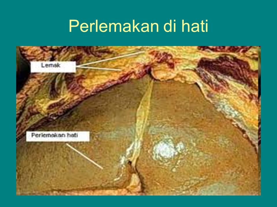 Lemak yang mempunyai titik lebur tinggi bersifat padat pada suhu kamar, sedangkan yang mempunyai titik lebur rendah bersifat cair.