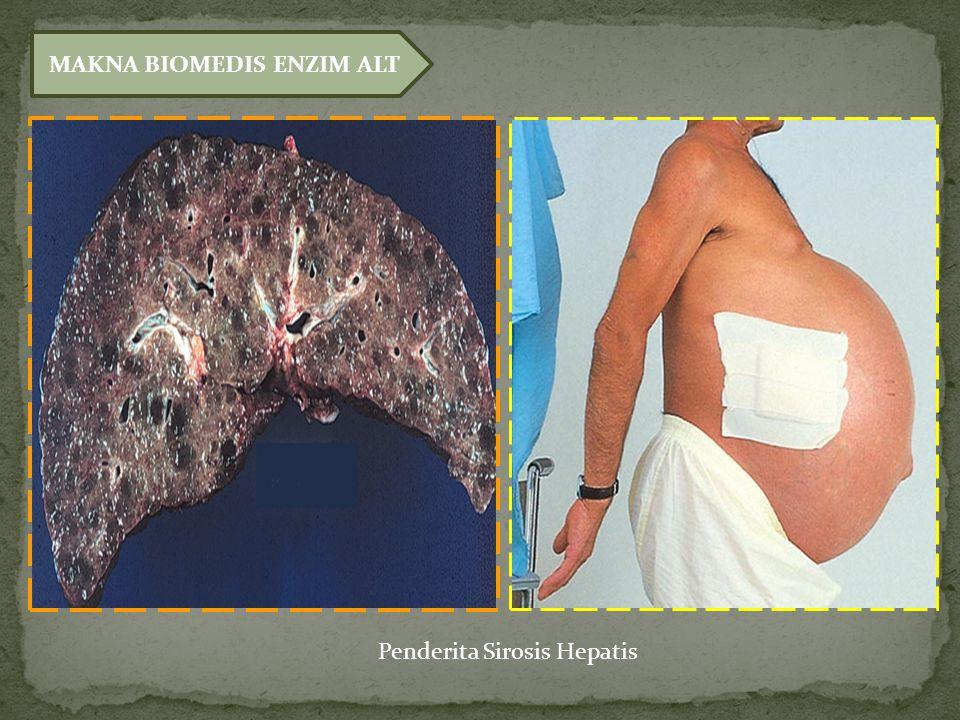 MAKNA BIOMEDIS ENZIM ALT Penderita Sirosis Hepatis