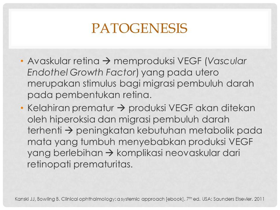 PATOGENESIS Avaskular retina  memproduksi VEGF (Vascular Endothel Growth Factor) yang pada utero merupakan stimulus bagi migrasi pembuluh darah pada