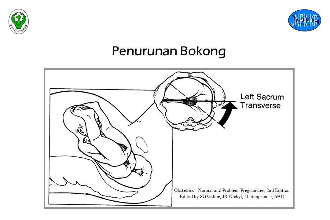 Penurunan Bokong Obstetrics - Normal and Problem Pregnancies, 2nd Edition Edited by SG Gabbe, JR Niebyl, JL Simpson.