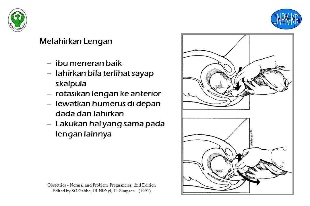 Melahirkan Lengan –ibu meneran baik –lahirkan bila terlihat sayap skalpula –rotasikan lengan ke anterior –lewatkan humerus di depan dada dan lahirkan –Lakukan hal yang sama pada lengan lainnya Obstetrics - Normal and Problem Pregnancies, 2nd Edition Edited by SG Gabbe, JR Niebyl, JL Simpson.