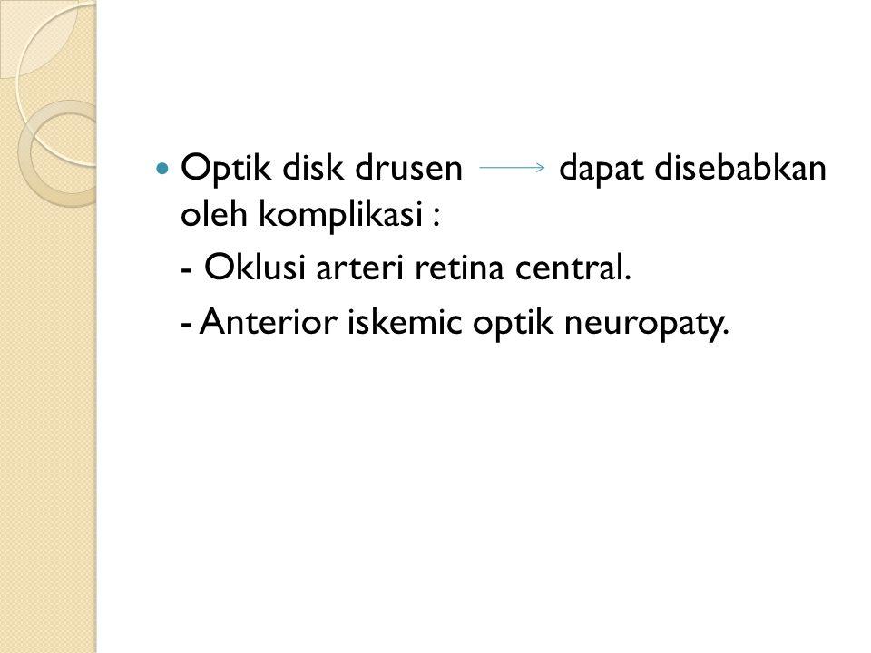 Optik disk drusen dapat disebabkan oleh komplikasi : - Oklusi arteri retina central. - Anterior iskemic optik neuropaty.