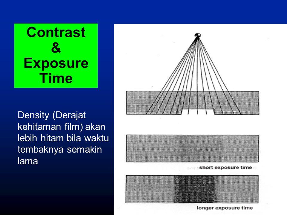 Contrast & Exposure Time Density (Derajat kehitaman film) akan lebih hitam bila waktu tembaknya semakin lama
