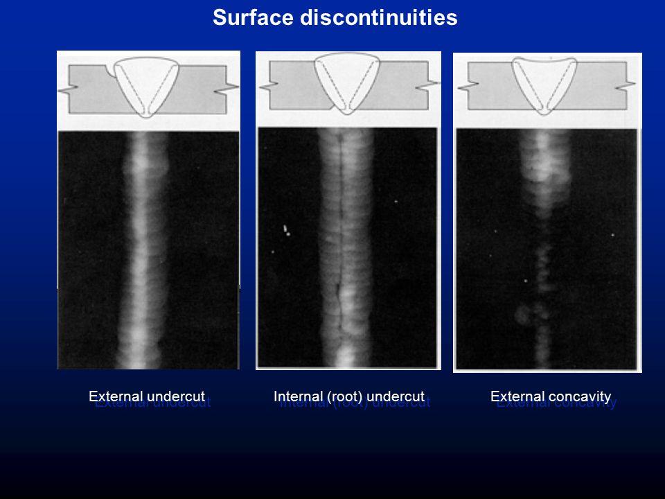Surface discontinuities External concavity Internal (root) undercut External undercut