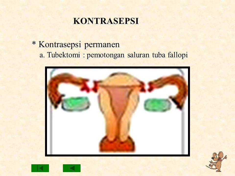 KONTRASEPSI * Kontrasepsi permanen a. Tubektomi : pemotongan saluran tuba fallopi