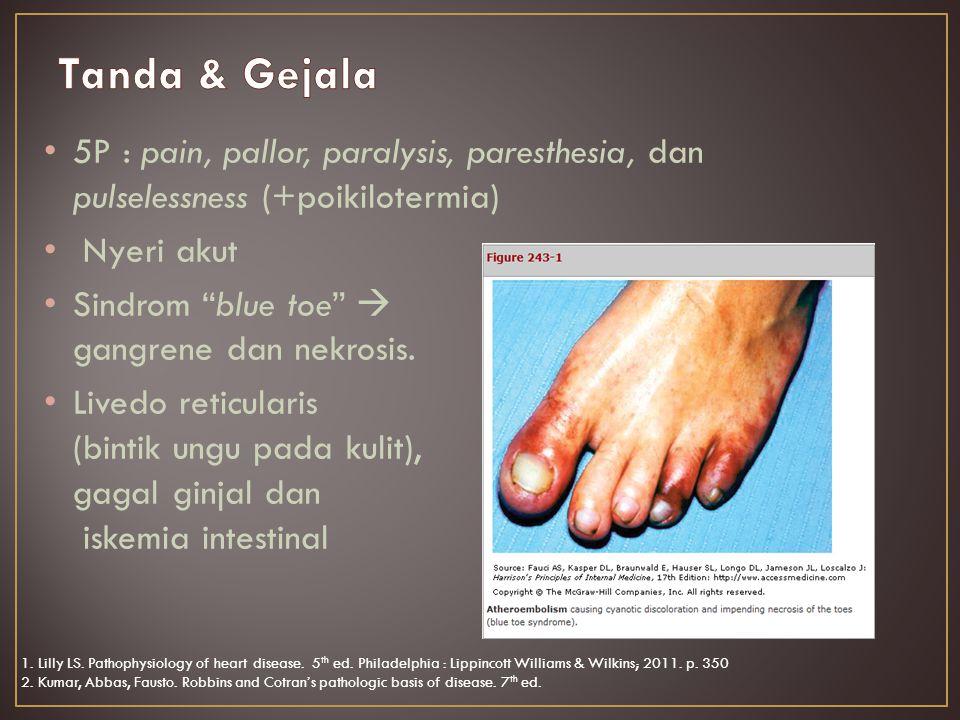 5P : pain, pallor, paralysis, paresthesia, dan pulselessness (+poikilotermia) Nyeri akut Sindrom blue toe  gangrene dan nekrosis.