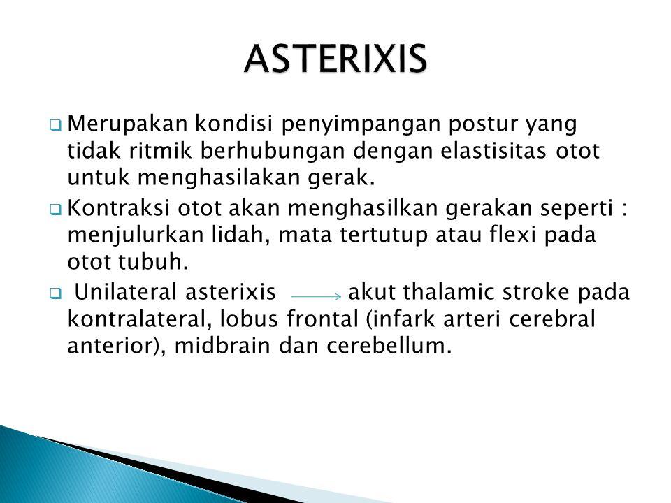  Merupakan kondisi penyimpangan postur yang tidak ritmik berhubungan dengan elastisitas otot untuk menghasilakan gerak.  Kontraksi otot akan menghas