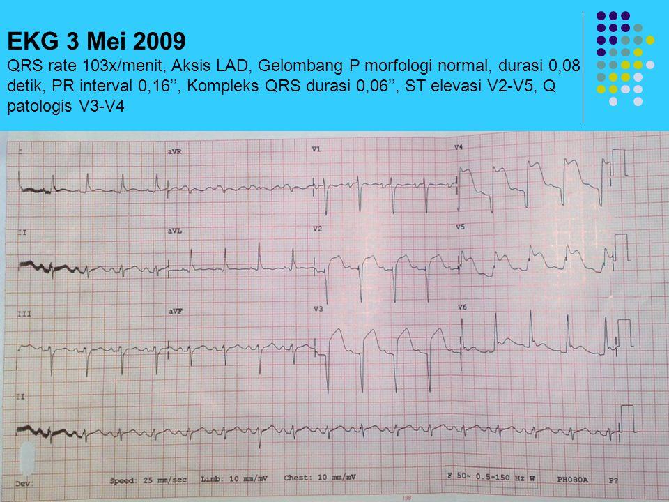 EKG 3 Mei 2009 QRS rate 103x/menit, Aksis LAD, Gelombang P morfologi normal, durasi 0,08 detik, PR interval 0,16'', Kompleks QRS durasi 0,06'', ST ele