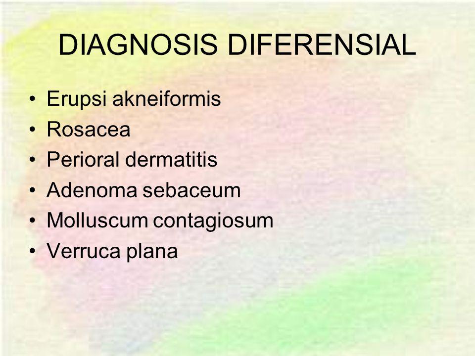 DIAGNOSIS DIFERENSIAL Erupsi akneiformis Rosacea Perioral dermatitis Adenoma sebaceum Molluscum contagiosum Verruca plana