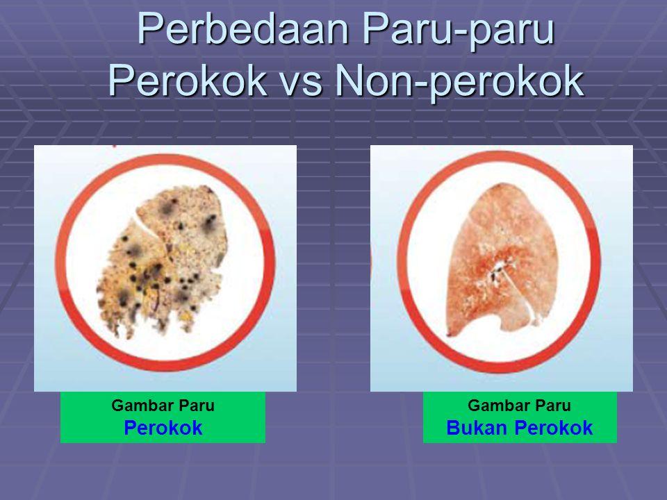 Perbedaan Paru-paru Perokok vs Non-perokok Gambar Paru Perokok Gambar Paru Bukan Perokok