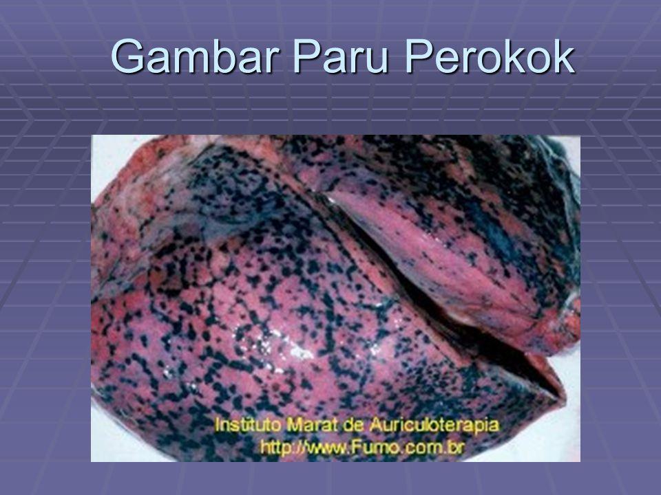 Gambar Paru Perokok