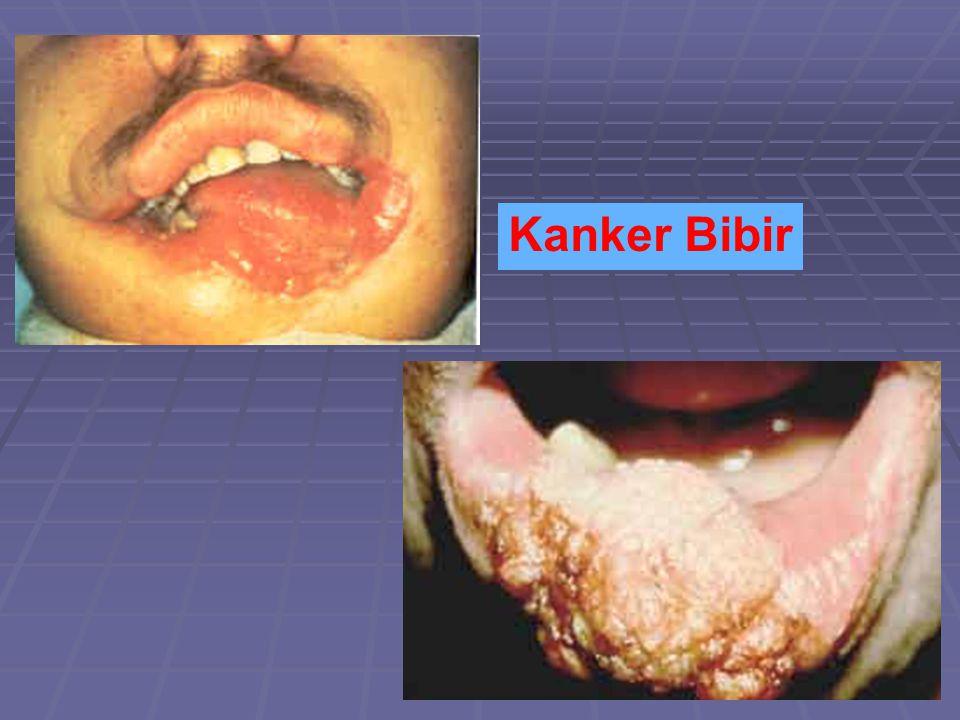 Kanker Bibir