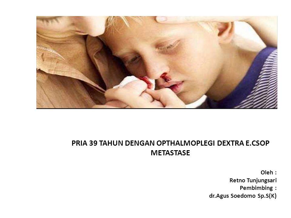 PRIA 39 TAHUN DENGAN OPTHALMOPLEGI DEXTRA E.CSOP METASTASE Oleh : Retno Tunjungsari Pembimbing : dr.Agus Soedomo Sp.S(K)