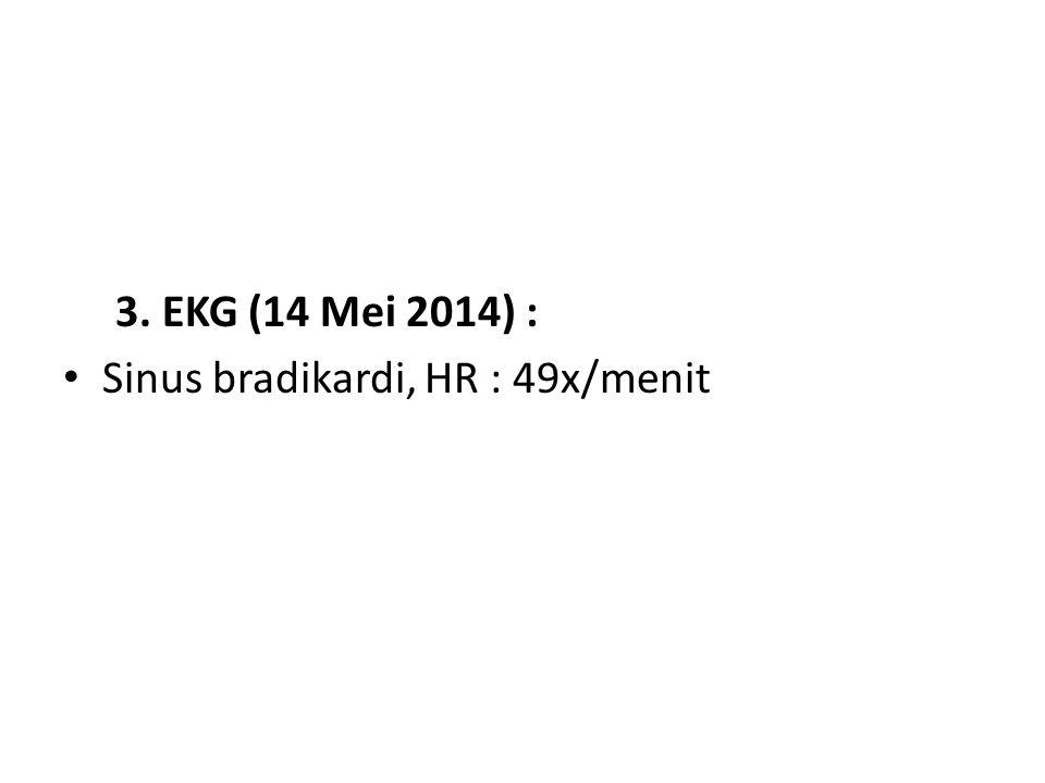 3. EKG (14 Mei 2014) : Sinus bradikardi, HR : 49x/menit