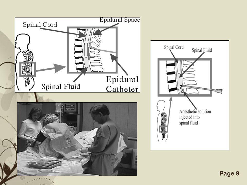 Free Powerpoint TemplatesPage 19 ABSORBSI ADALAH penyerapan obat ke dalam tubuh Proses transfer suatu obat dari tempat pemberian ke dalam aliran darah Kecepatan dan efisiensi absorbsi tergantung pada cara pemberian