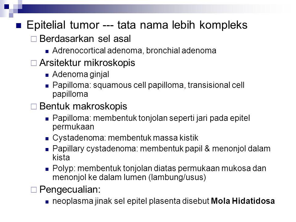 Epitelial tumor --- tata nama lebih kompleks  Berdasarkan sel asal Adrenocortical adenoma, bronchial adenoma  Arsitektur mikroskopis Adenoma ginjal