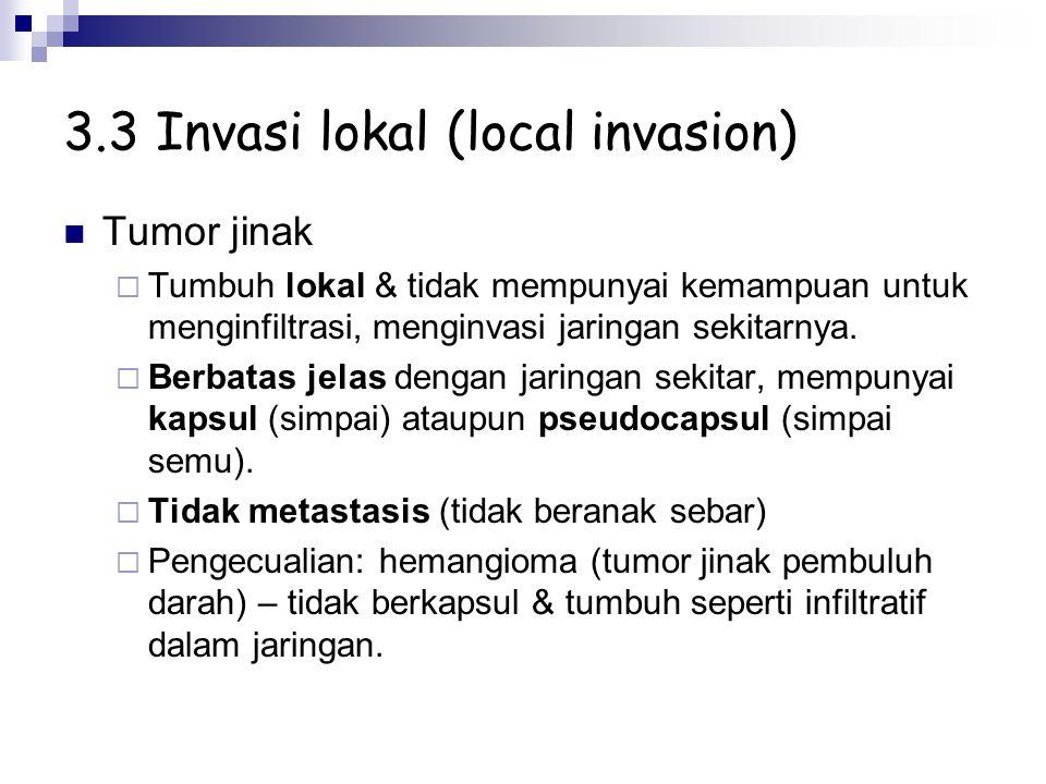 3.3 Invasi lokal (local invasion) Tumor jinak  Tumbuh lokal & tidak mempunyai kemampuan untuk menginfiltrasi, menginvasi jaringan sekitarnya.  Berba
