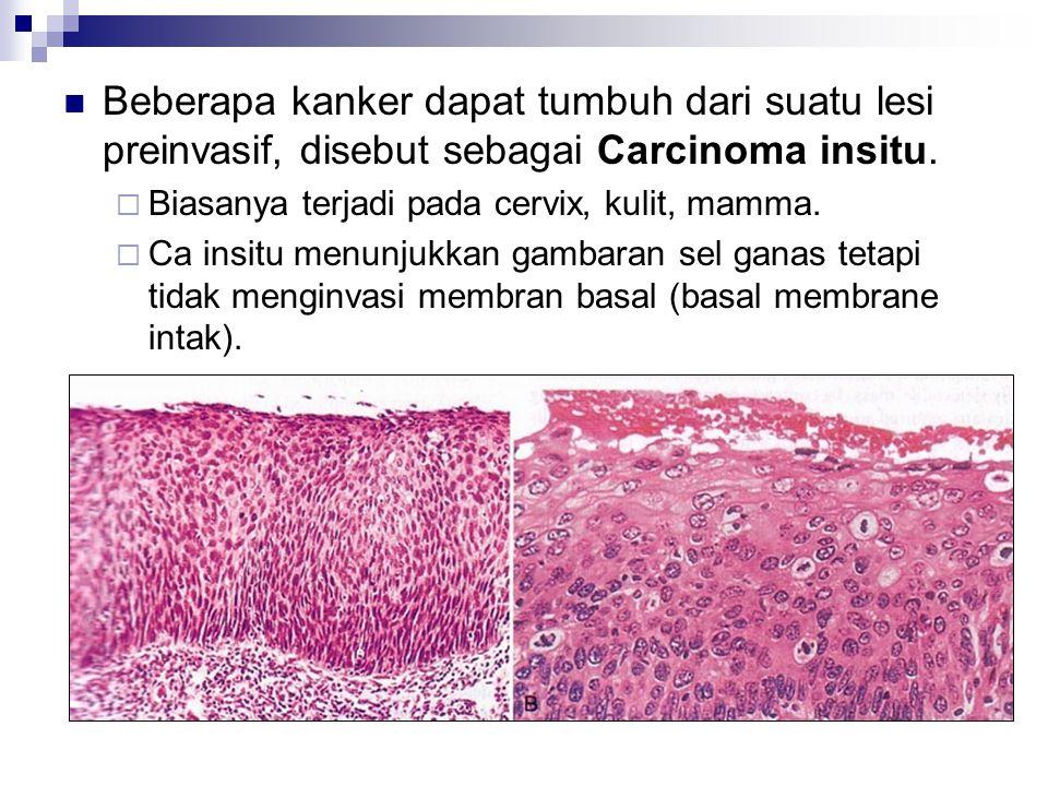 Beberapa kanker dapat tumbuh dari suatu lesi preinvasif, disebut sebagai Carcinoma insitu.  Biasanya terjadi pada cervix, kulit, mamma.  Ca insitu m