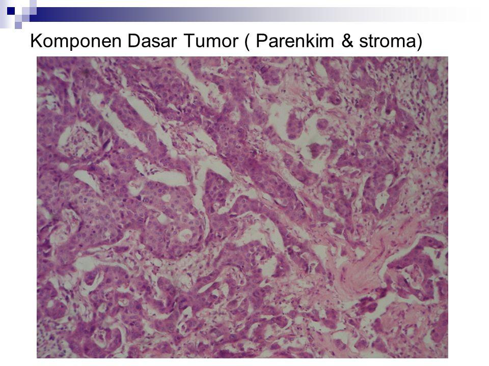 Komponen Dasar Tumor ( Parenkim & stroma)
