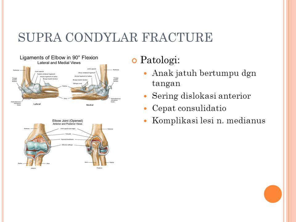 SUPRA CONDYLAR FRACTURE Patologi: Anak jatuh bertumpu dgn tangan Sering dislokasi anterior Cepat consulidatio Komplikasi lesi n. medianus