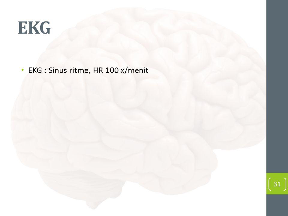 EKG EKG : Sinus ritme, HR 100 x/menit 31
