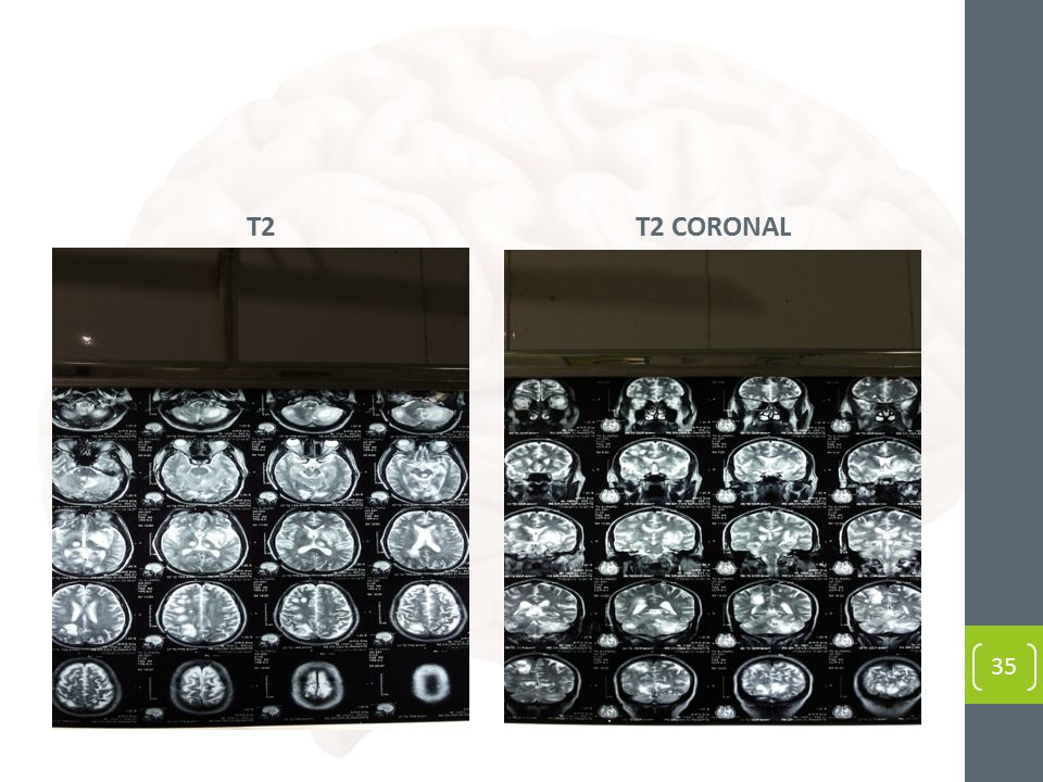 T2T2 CORONAL 35