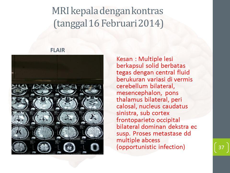 MRI kepala dengan kontras (tanggal 16 Februari 2014) FLAIR Kesan : Multiple lesi berkapsul solid berbatas tegas dengan central fluid berukuran variasi di vermis cerebellum bilateral, mesencephalon, pons thalamus bilateral, peri calosal, nucleus caudatus sinistra, sub cortex frontoparieto occipital bilateral dominan dekstra ec susp.