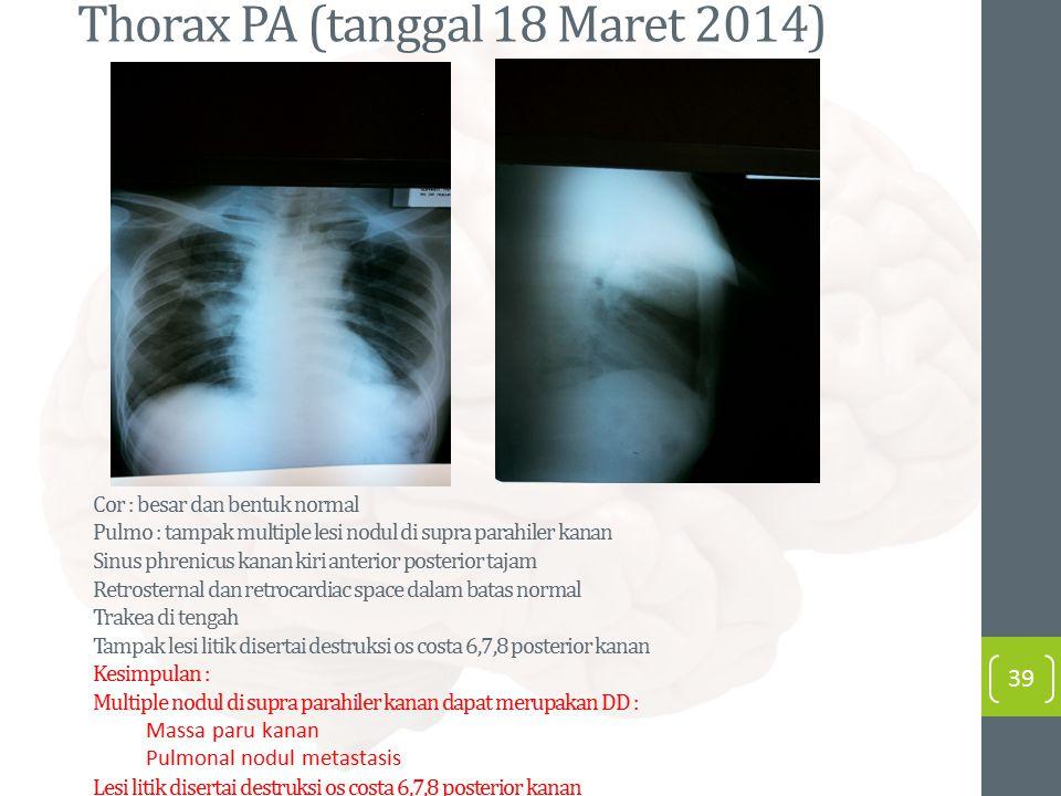 Thorax PA (tanggal 18 Maret 2014) 39 Cor : besar dan bentuk normal Pulmo : tampak multiple lesi nodul di supra parahiler kanan Sinus phrenicus kanan k