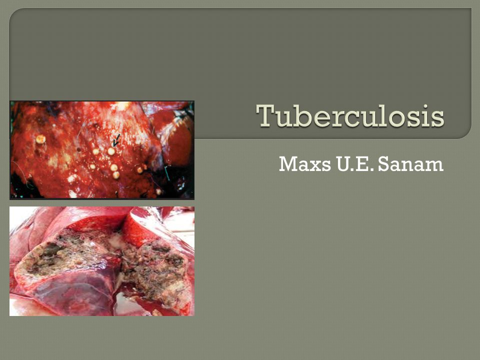 Tuberculosis (TB) adalah penyakit granulamatosa menular, disebabkan oleh kuman genus Mycobacterium, berbentuk batang, Gram-positif, dan bersifat tahan asam  Penyakit umumnya berlangsung secara kronis, dan sangat melemahkan (debilitating)