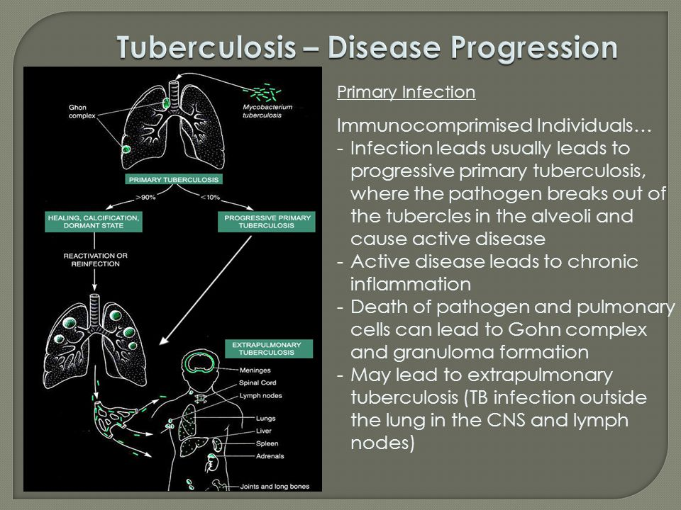 Primary Infection Immunocomprimised Individuals… -Infection leads usually leads to progressive primary tuberculosis, where the pathogen breaks out of