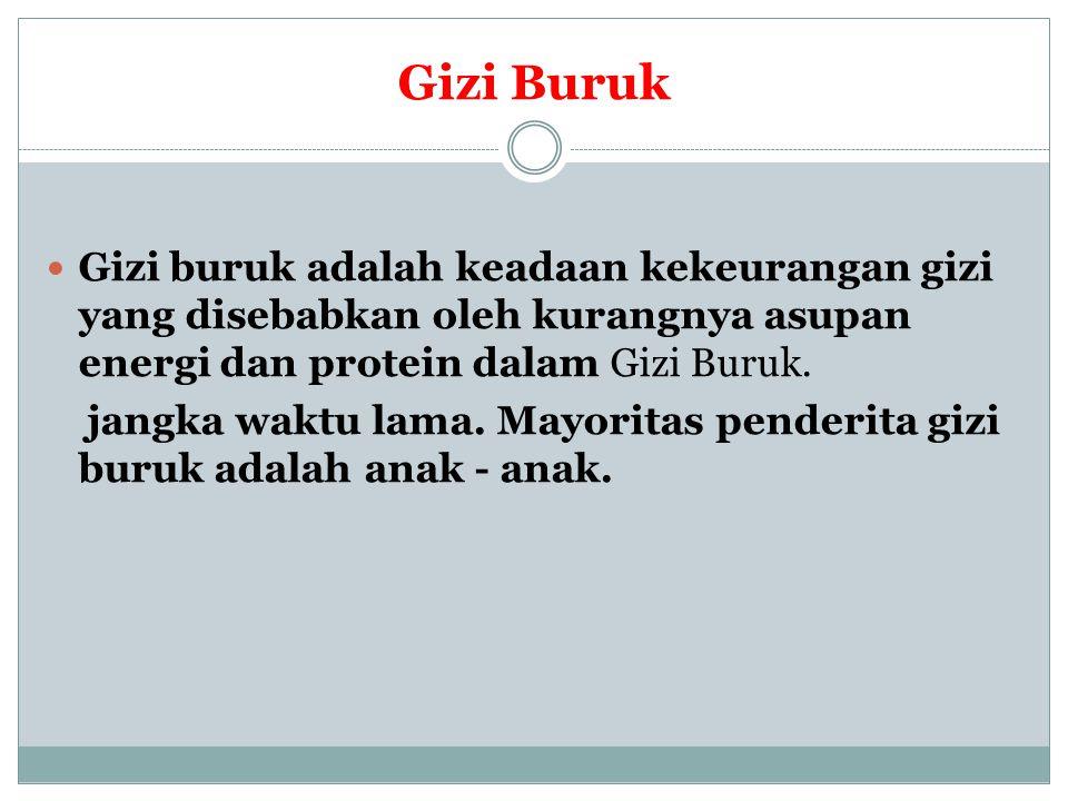 Gizi Buruk Gizi buruk adalah keadaan kekeurangan gizi yang disebabkan oleh kurangnya asupan energi dan protein dalam Gizi Buruk.