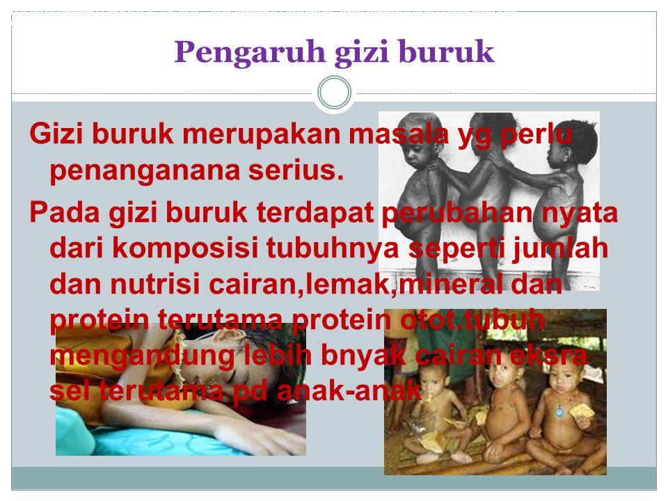 Pengaruh gizi buruk Saat ini di Indonesia tercatat 35,7% anak - anak menderita gizi buruk, lebih tinggi daripada tahun 2010 lalu.