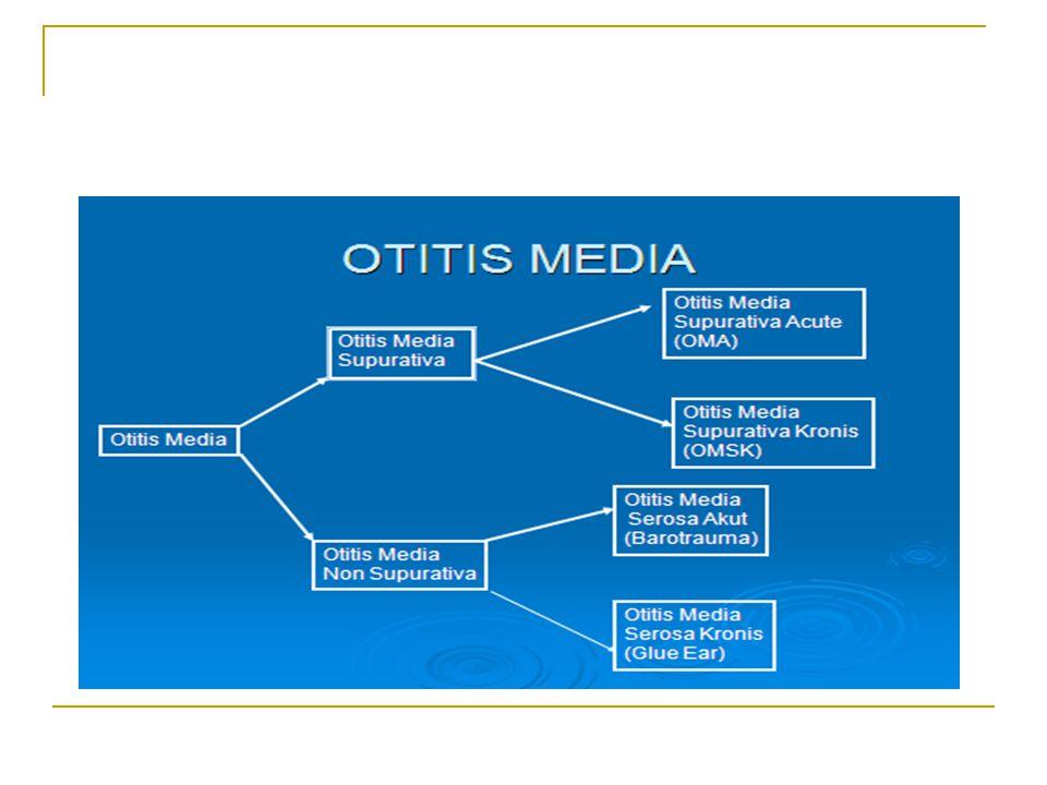 Otitis media akut (OMA) adalah peradangan akut sebagian atau seluruh periosteum telinga tengah Otitis media akut (OMA) Peradanagn pd mukosa cavum tymphani dg pembentukan mukopus di dlm cavum tymphani.