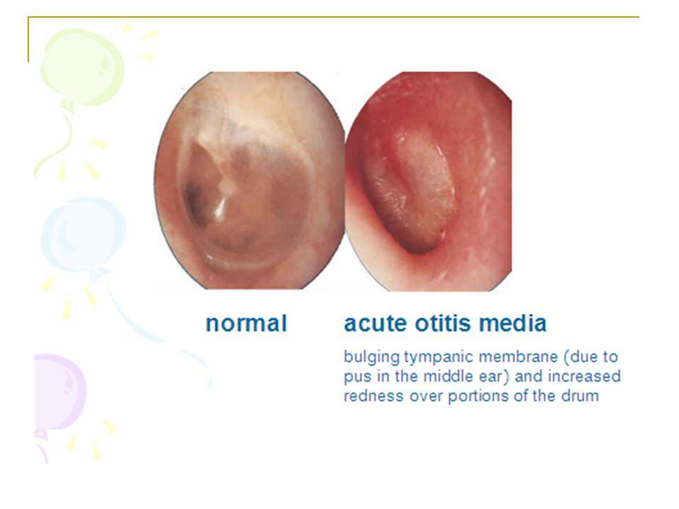 Patofisiologis Penyebab utama otitis media akuta adalah masuknya bakteri patogenik ke dalam telinga tengah yang normalnya steril.
