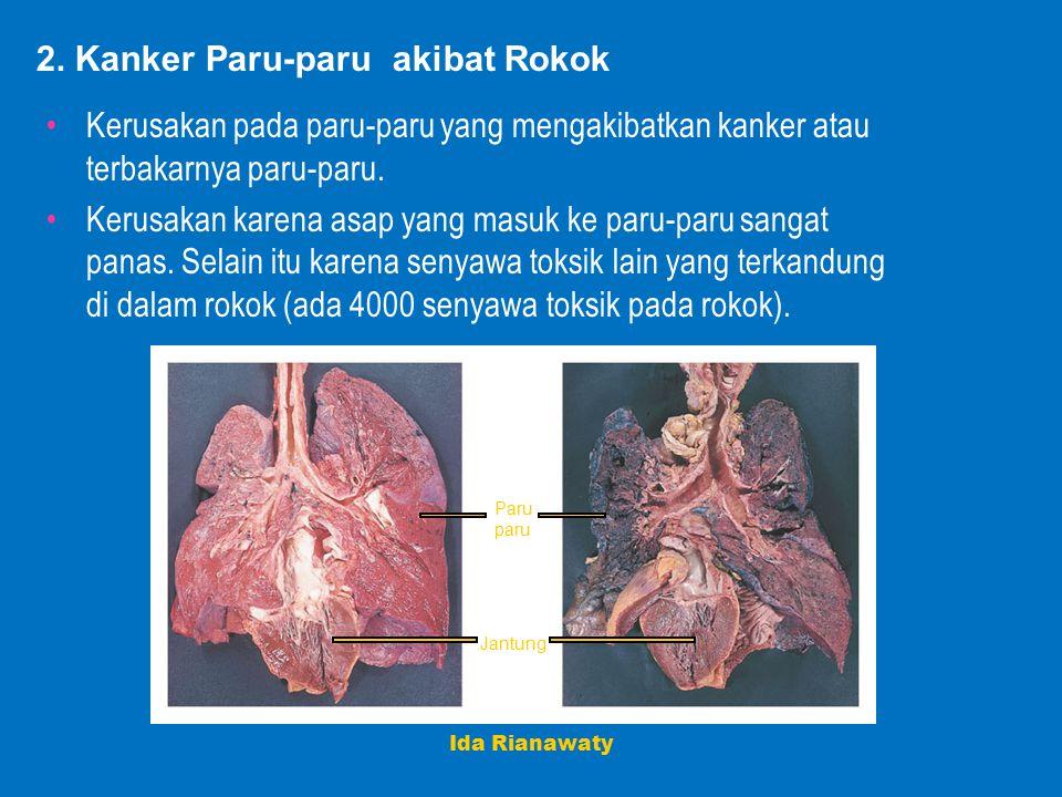 2. Kanker Paru-paru akibat Rokok Kerusakan pada paru-paru yang mengakibatkan kanker atau terbakarnya paru-paru. Kerusakan karena asap yang masuk ke pa