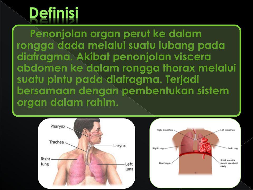 Penonjolan organ perut ke dalam rongga dada melalui suatu lubang pada diafragma. Akibat penonjolan viscera abdomen ke dalam rongga thorax melalui suat