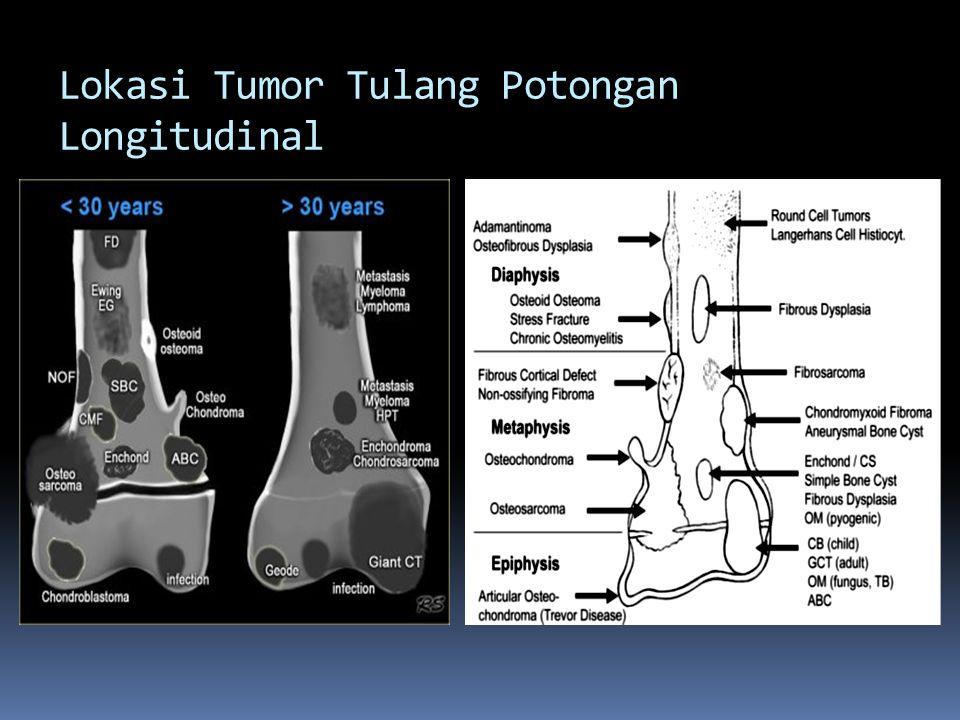 Lokasi Tumor Tulang Potongan Longitudinal