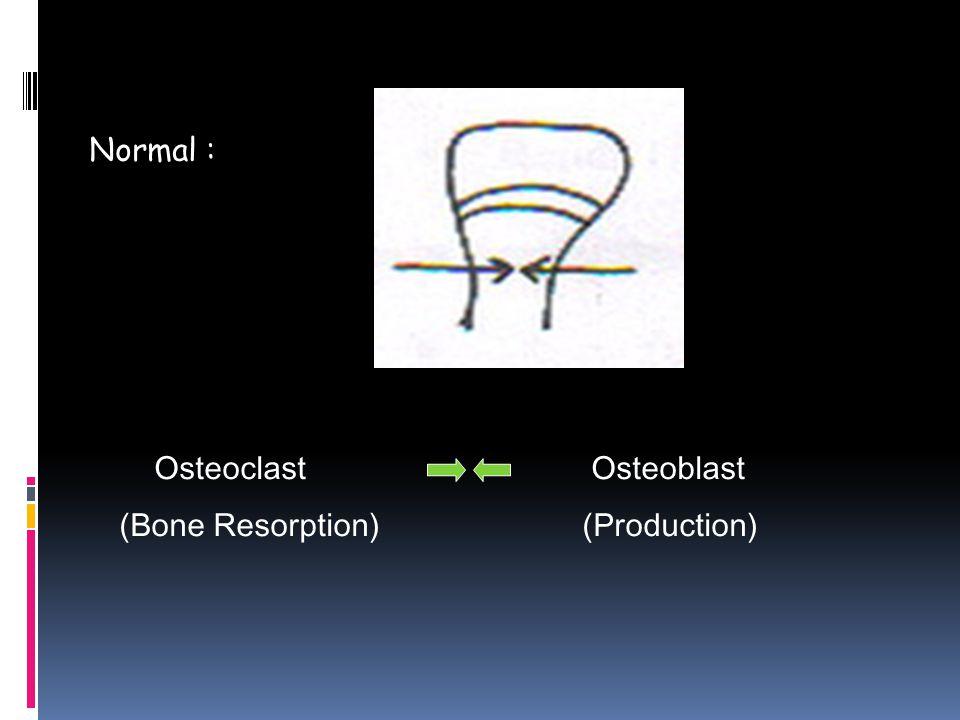 Osteoclast Osteoblast (Bone Resorption) (Production) Normal :