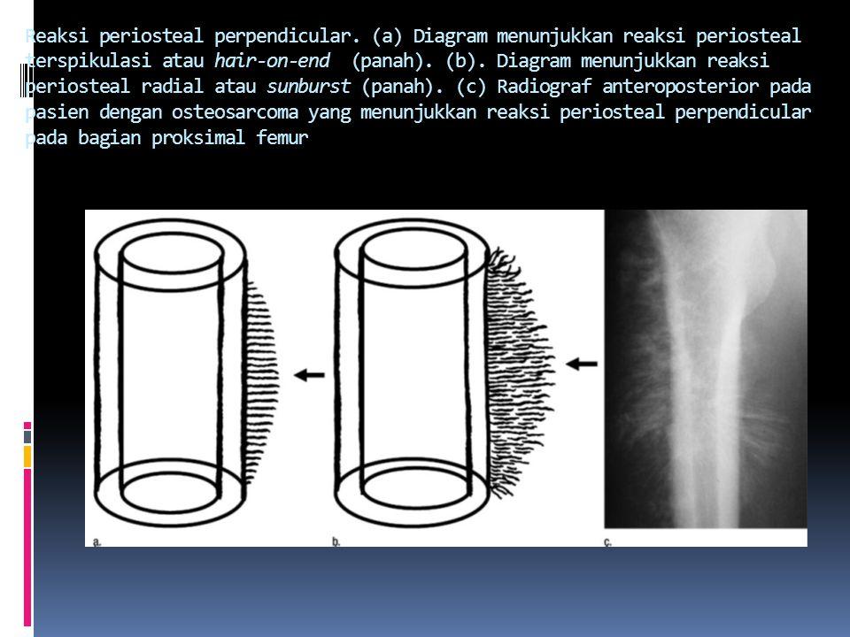 Reaksi periosteal perpendicular.