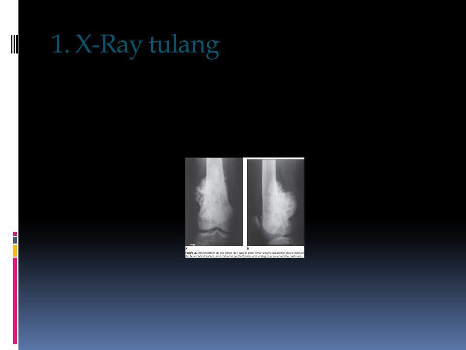 1. X-Ray tulang
