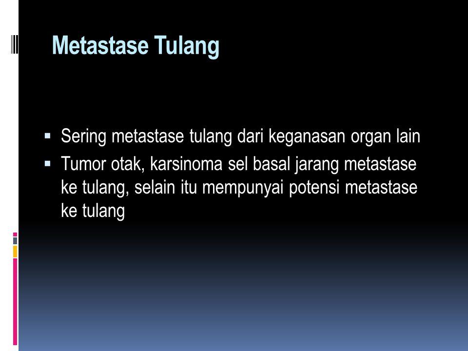 Metastase Tulang  Sering metastase tulang dari keganasan organ lain  Tumor otak, karsinoma sel basal jarang metastase ke tulang, selain itu mempunyai potensi metastase ke tulang